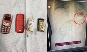युवक ने निगल लिया Nokia का मोबाइल,डॉक्टर ने दो घंटे के ऑपरेशन के बाद पेट से निकाला